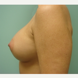 35-44 year old woman treated with Breast Augmentation after 3167949