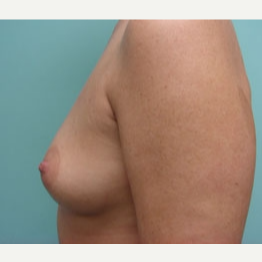 35-44 year old woman treated with Breast Augmentation before 3167949