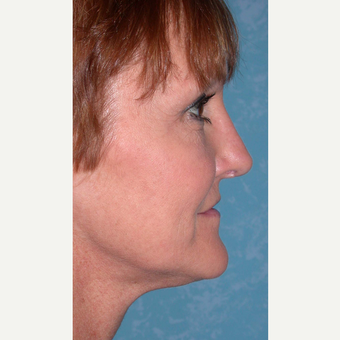 44 year old woman  with Rhinoplasty after 3732563