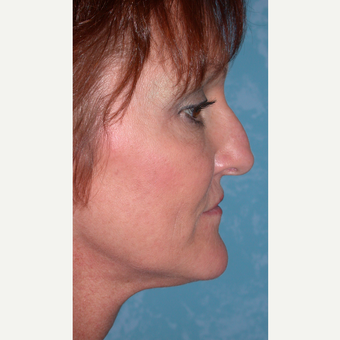 44 year old woman  with Rhinoplasty before 3732563