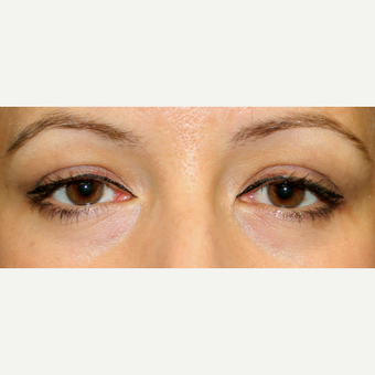 Transconjunctival blepharoplasty in young woman after 2767740