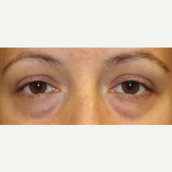 Transconjunctival blepharoplasty in young woman before 2767740