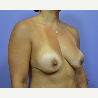 45-54 year old woman treated with Breast Implant Revision before 3421715