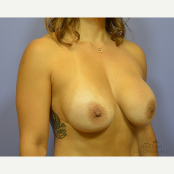 45-54 year old woman treated with Breast Implant Revision after 3421715