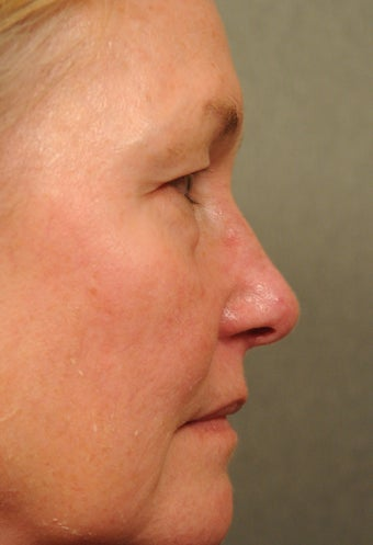 55 year old female with diffuse facial redness 927792
