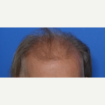 45-54 year old man treated with Hair Transplant before 3065521