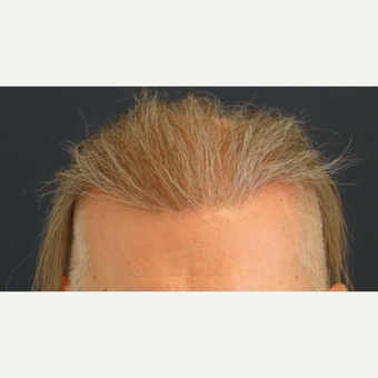 45-54 year old man treated with Hair Transplant after 3065521