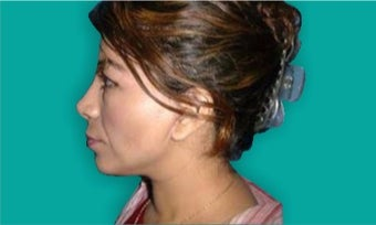 25-34 year old woman treated with Rhinoplasty after 3242229