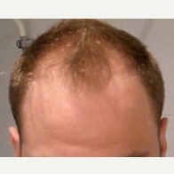 35 year old man treated with Hair Transplant before 3815584