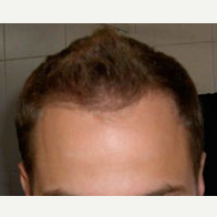 35 year old man treated with Hair Transplant after 3815584