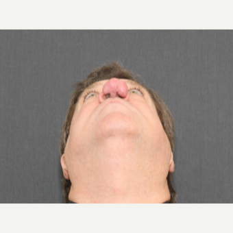 55-64 year old man treated with Nose Surgery - Rhinophyma Reduction before 3372235