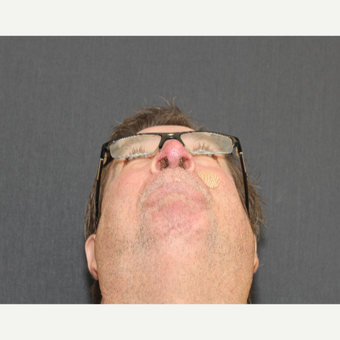 55-64 year old man treated with Nose Surgery - Rhinophyma Reduction