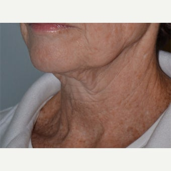 55-64 year old woman treated with Ultherapy 1859750
