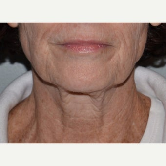 55-64 year old woman treated with Ultherapy before 1859750