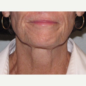 55-64 year old woman treated with Ultherapy after 1859750
