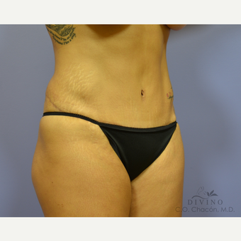 45-54 year old woman treated with Tummy Tuck Revision after 3415909