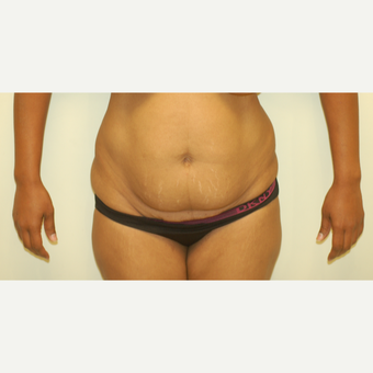 55-64 year old woman treated with Tummy Tuck before 3061456