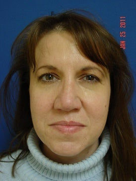 50 Year Old Woman Treated or Nose Deformity