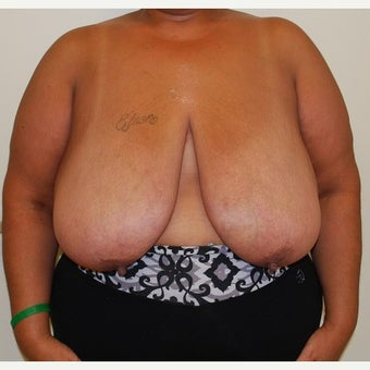 45-54 year old woman treated with Breast Reduction before 1650279