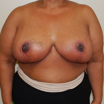 45-54 year old woman treated with Breast Reduction after 1650279