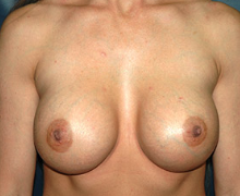 Breast Implants after 3545088