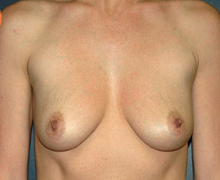 Breast Implants before 3545088