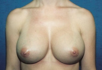 Breast Augmentation after 260671