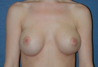 Breast Augmentation before 260671