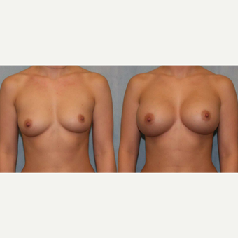 25-34 year old woman treated with Breast Augmentation before 3418410