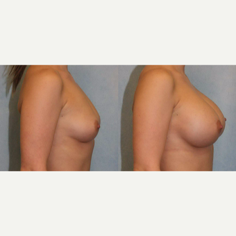 25-34 year old woman treated with Breast Augmentation after 3418410