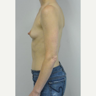 45-54 year old woman treated with Breast Implants who wants a natural look before 3604029