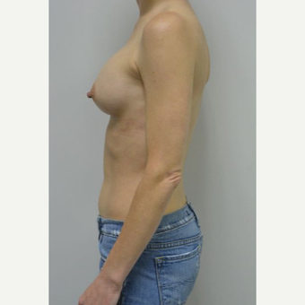 45-54 year old woman treated with Breast Implants who wants a natural look after 3604029