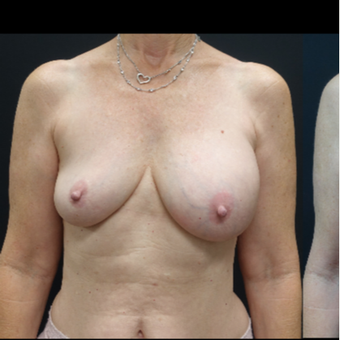 35-44 year old woman treated with Breast Lift with Implants before 3731594