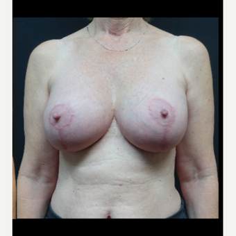 35-44 year old woman treated with Breast Lift with Implants after 3731594