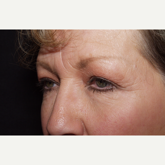 55-64 year old woman treated with Brow Lift before 3481341