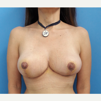 35-44 year old woman treated with Breast Reduction after 3009327