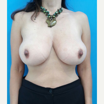 35-44 year old woman treated with Breast Reduction before 3009327