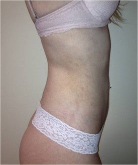Laser Liposuction 561154