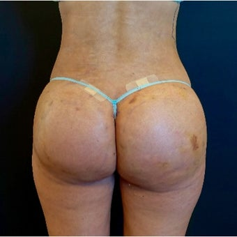 25-34 year old woman treated with Butt Implants after 2530362