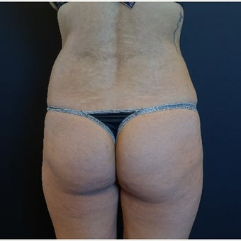 25-34 year old woman treated with Butt Implants before 2530362