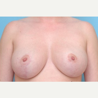 18-24 year old woman treated with Breast Reduction after 3488205