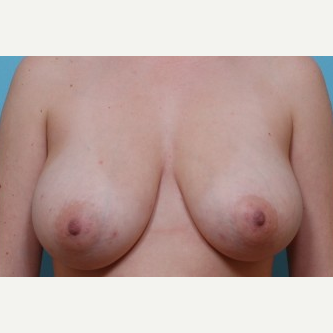 18-24 year old woman treated with Breast Reduction before 3488205