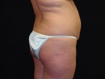 Brazilian Buttocks Lift  before 145532