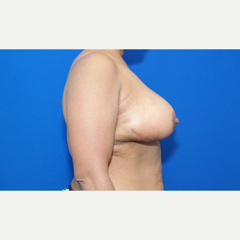 45-54 year old woman treated with Breast Reduction after 3104191