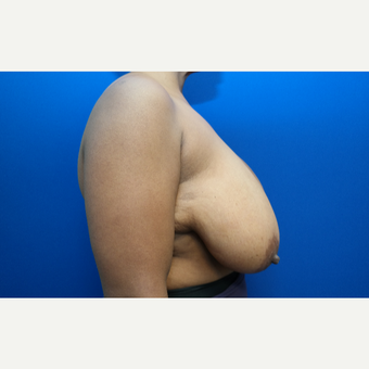 45-54 year old woman treated with Breast Reduction before 3104191