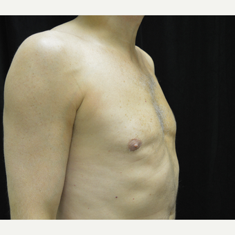 45-54 year old man treated with Male Breast Reduction after 3181722