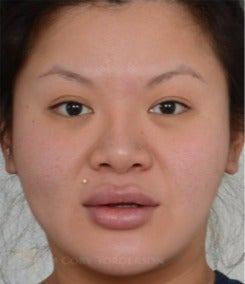 25-34 year old woman treated with Asian Eyelid Surgery before 3264400