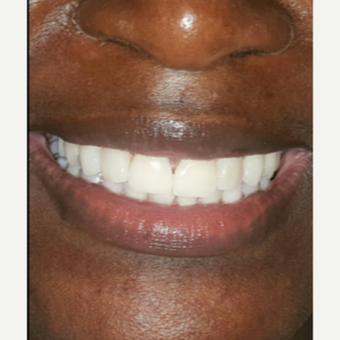45-54 year old woman treated with Porcelain Veneers after 3176898