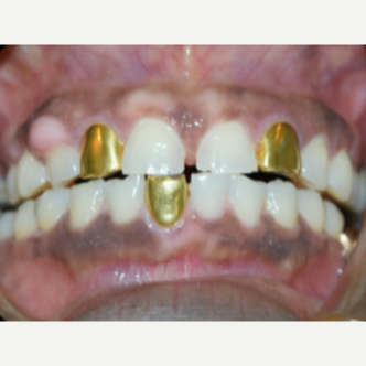45-54 year old woman treated with Porcelain Veneers before 3176898