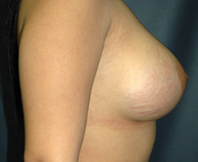 Breast Implants after 3545046